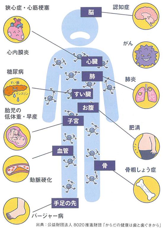 全身疾患と歯周病の関係