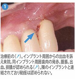 光殺菌治療1