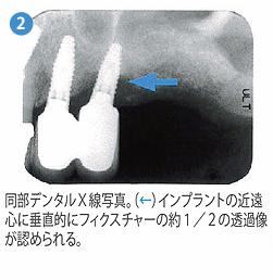 光殺菌治療2