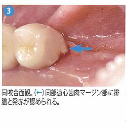 光殺菌治療3