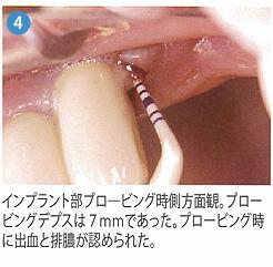 光殺菌治療4