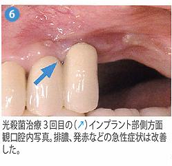 光殺菌治療6